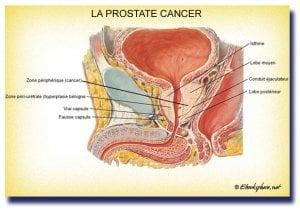 Cancer de la prostate, surtout ne rien faire
